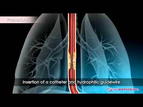 Viermi intestinali reactii adverse