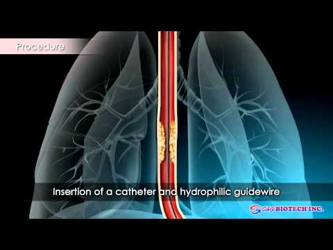 Breast intraductal papilloma hyperplasia