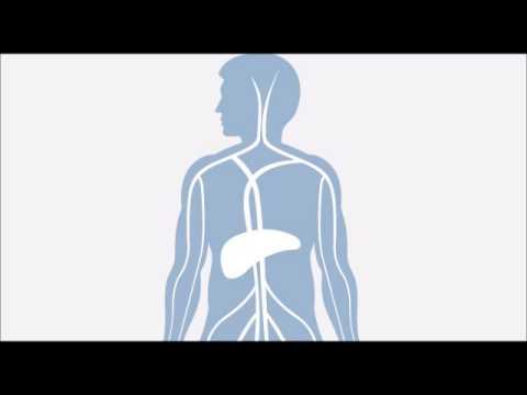 VSD. lhypertension pulmonaire
