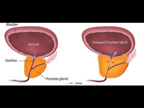 La cause des pierres dans la glande de la prostate
