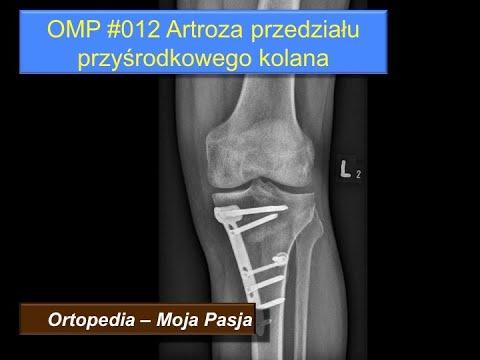 Durere și înroșirea articulației cotului