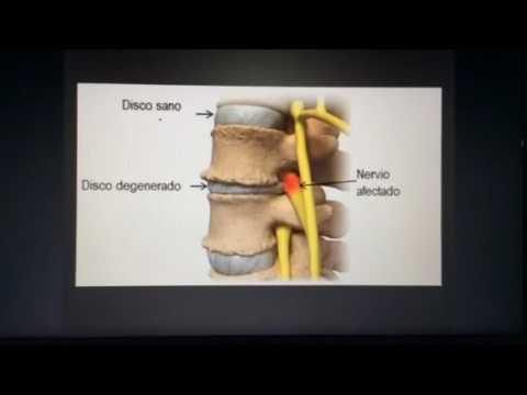 Osteocondrosis cervical c4-c5