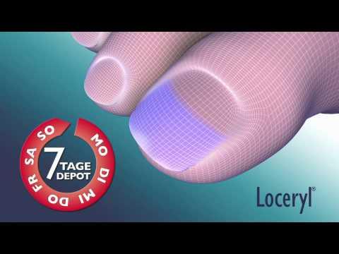 Meschpalzewyj gribok auf den Beinen die Symptome und die Behandlung des Fotos