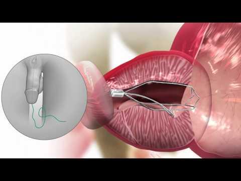 Strahlentherapie Krebs der Prostata bei der Behandlung von