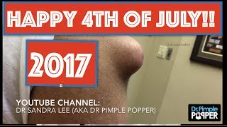 DR PIMPLE POPPER POPS ARE EXTRA SPECIAL ON JULY 4TH!! 👉🏼🇺🇸👈🏼