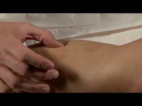 La varice variqueuse du pied les symptômes et le traitement