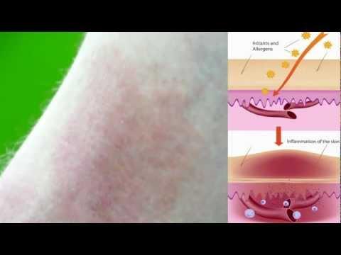 Hemolytic colibacillus e dermatite atopic
