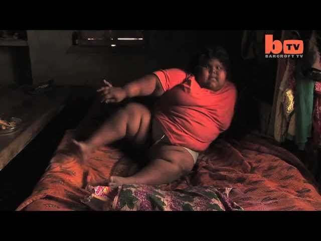 Suman Khatun, One Of The Fattest Kids In The World