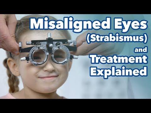Mind a látástudományról