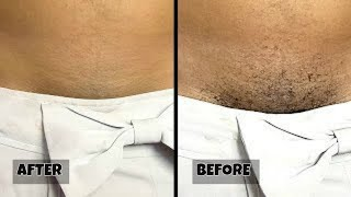 Stop shaving !! This is how you should remove your pubic hair without shaving or waxing