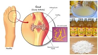 How to Lower Uric Acid Naturally