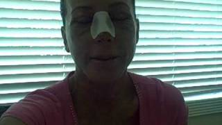 My Facial Plastic Surgery Blog – Recovery Day 14