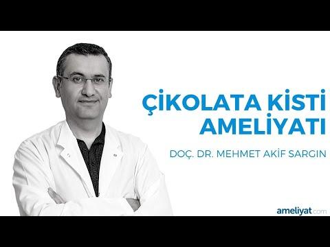 Çikolata Kisti Ameliyatı (Dr. Mehmet Akif SARGIN)