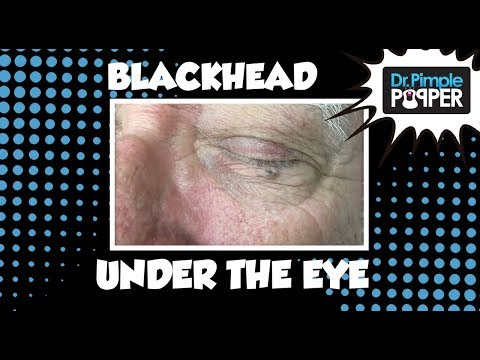 Giant Blackhead Just Under the Eye!