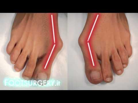 อะไรคือกระแทกบนนิ้วเท้า