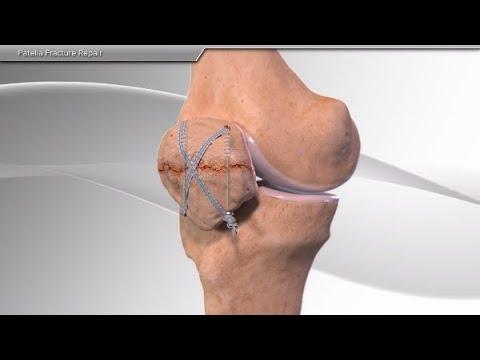 Artrita articulației umărului 3 grade