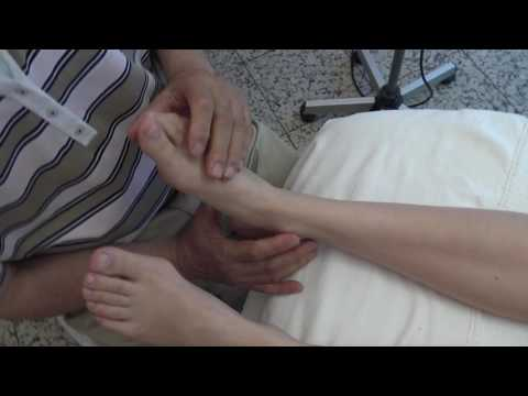 Hallux valgus foot surgery