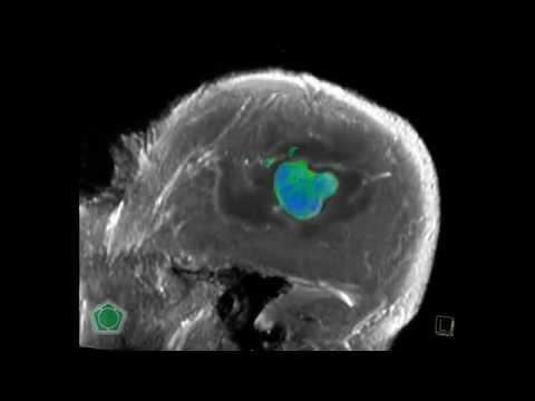 Cancer renal diagnostic diferential