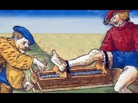 Перелом большеберцовой кости © Osteosynthesis of fractures of the tibia