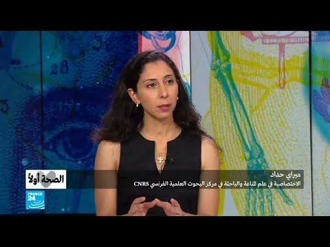 العرب اليوم - ميراي حداد تكشف خطورة مرض فقدان المناعة المكتسبة