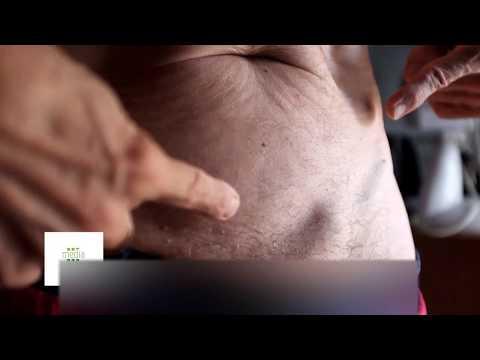 Cura di ernia di reparto lombare di una vertebra