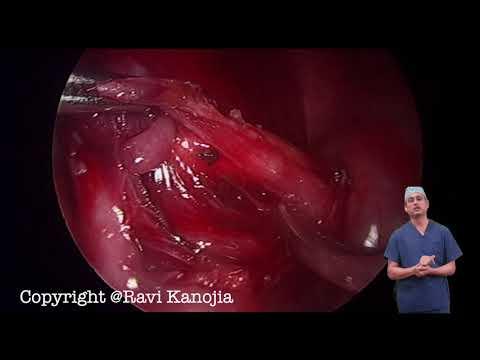 Sekwestracja płucna