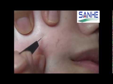 Operazione di thrombophlebitis di una conseguenza