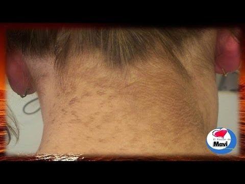 Cura delleczema umido diventante su unguenti di mani