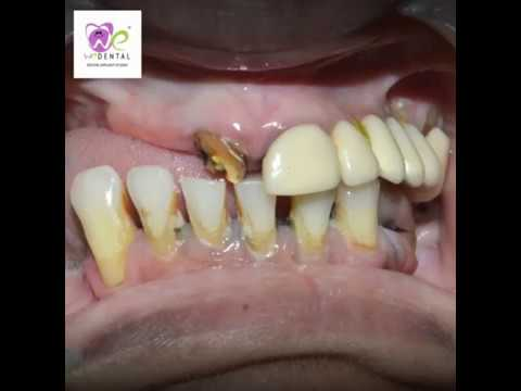 Replacing the missing tooth by best dentist in coimbatore
