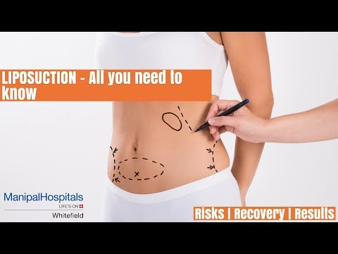 What is liposuction and what are the types of liposuction techniques? Dr. Ramani MHW