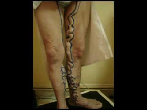 Le vene che sopportano tipi scoppiano