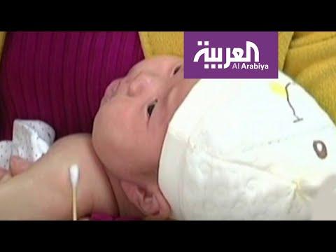 العرب اليوم - شاهد: هل الأطفال محصنون من