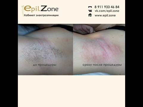 Электроэпиляция - удаление волос навсегда от Epil.Zone