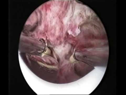 Trattamento prostatite nella fase acuta