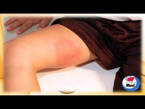 Segni di sinovite del gomito destro