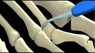 Metatarsalgia 3D.mov - Clínica Podológica DyN