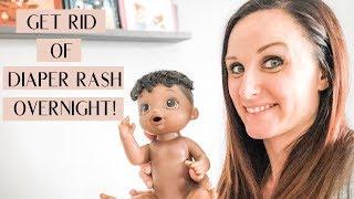 How To Get Rid of Diaper Rash Overnight | Best Diaper Rash Cream