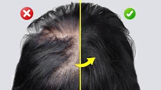 3 Lebensmittel, die sofort deinen Haarausfall stoppen