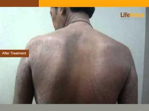 Die Behandlung der Schuppenflechte in der israelischen Klinik in moskwe