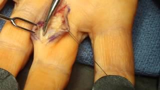 Live Surgery: Ganglion Cyst: Flexor Tendon Sheath (Finger)
