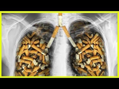 Allen ist es karr leicht, der Frauen Rauchen aufzugeben