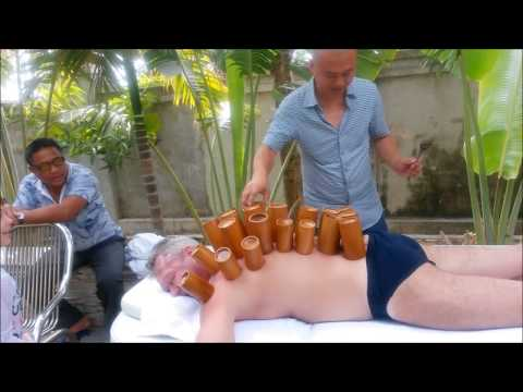 Как кальцинаты предстательной железы