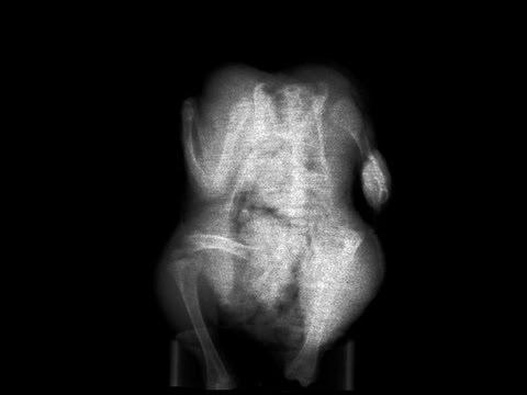 Terafleks von Gebärmutterhalskrebs degenerativen Scheiben