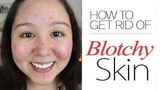 How to Get Rid of Blotchy Skin || Home Remedies for Blotchy skin || Melasma