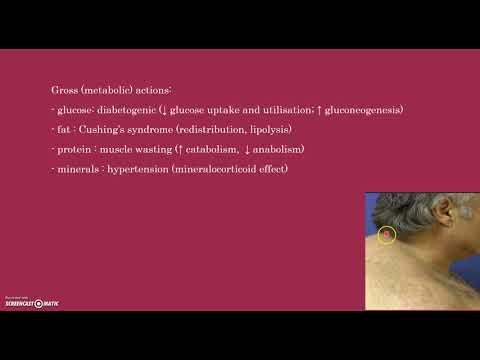Cura di eczema varicosa nel modo nazionale