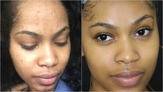 HOW TO GET RID OF ACNE, BREAKOUTS AND FACE RASHES!