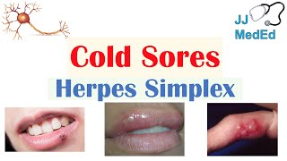 Cold Sores | Oral Herpes | Causes, Signs & Symptoms, Treatment