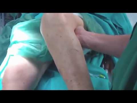 Trattamento passo 2-3 osteocondrosi