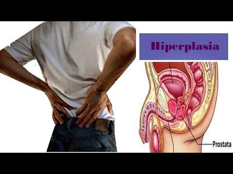 Ultra-som da próstata HBP