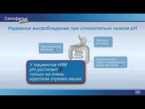 Лечение остеохондроза и артроза шейного отдела позвоночника
